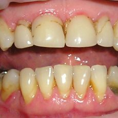 Why do teeth become loose?