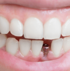 Dental Implants FAQ
