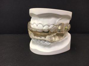 Dorsal mandibular splint