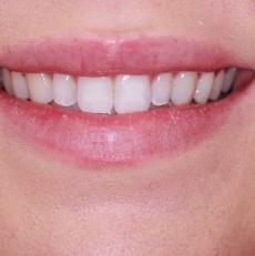 Cosmetic dentistry FAQ